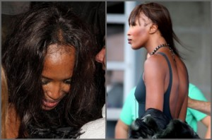Naomi Campbell Receding Hairline