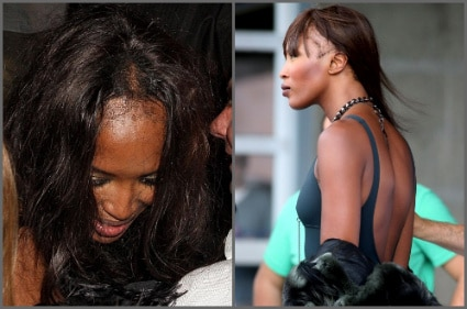 Hair extensions gone wild hair extensions naomi campbell receding hairline pmusecretfo Image collections